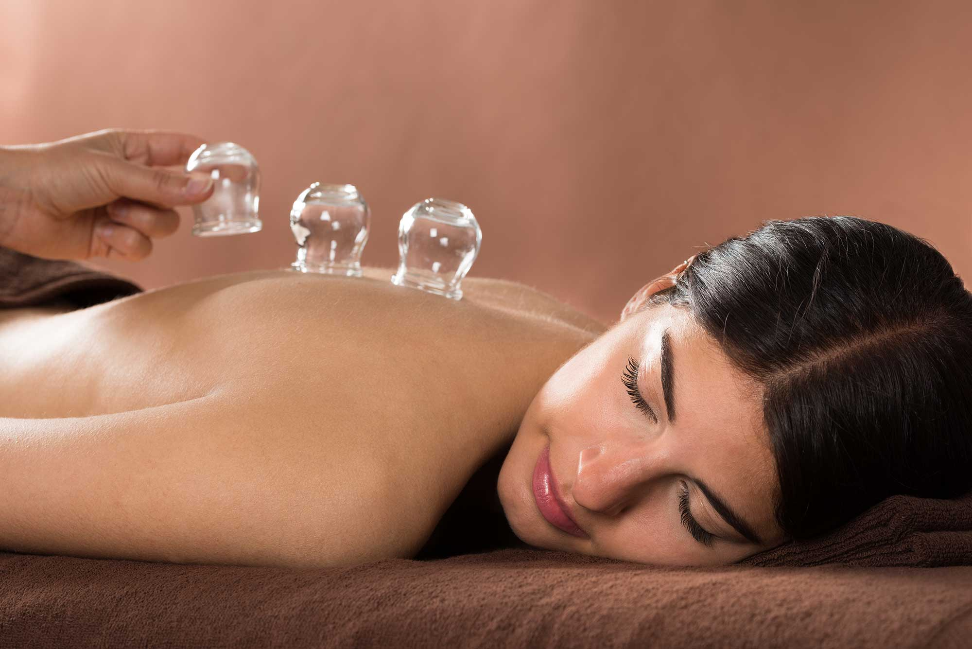 CuppingTherapy